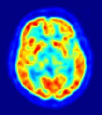 neuroimagin_CFS